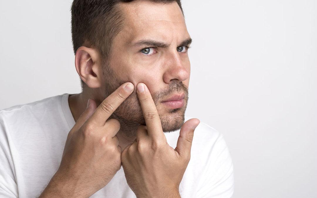 Les solutions contre les boutons sous la barbe